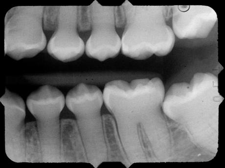 St Joseph Literature Review Dentinogenesis Imperfecta