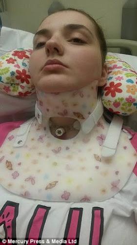 Doença rara faz com que esta jovem precise dormir amarrada para não se machucar