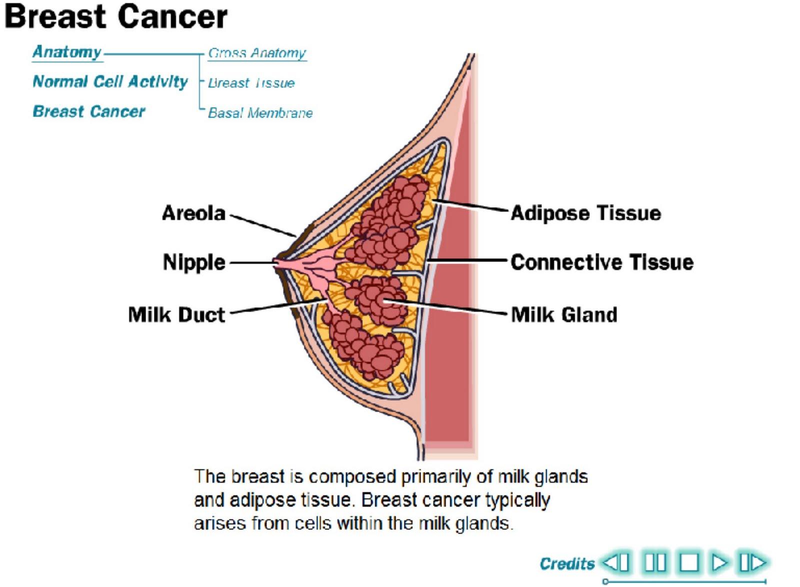 http://1.bp.blogspot.com/-PqllcLVbywg/TifDTj1UEhI/AAAAAAAAAGI/wcUv2t2rCzE/s1600/breastcancer.jpg