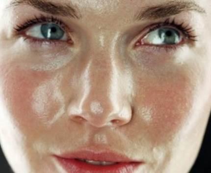 cara mengatasi kulit berminyak dengan benar
