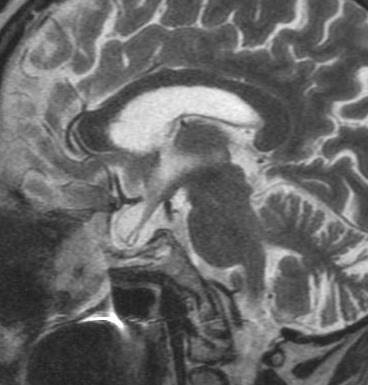 How To Fill A Cavity >> Dr Balaji Anvekar's Neuroradiology Cases: Secondary Empty Sella MRI