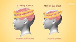 Microcefalia - O que é Como é diagnosticada a Microcefalia