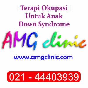 Terapi Okupasi Untuk Anak Down Syndrome