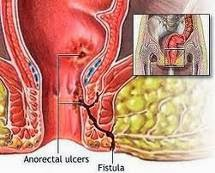 Obat Penyakit Fistula Anorectal