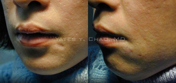 真皮移植改善青春痘疤dermal graft for acne scar, 趙彥宇Yates Y. Chao