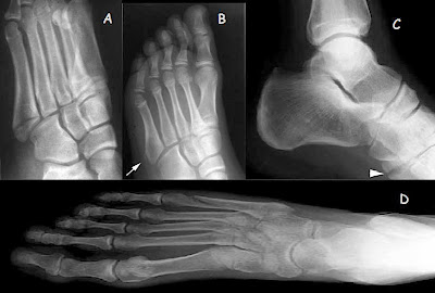 Fifth metatarsal base fractures