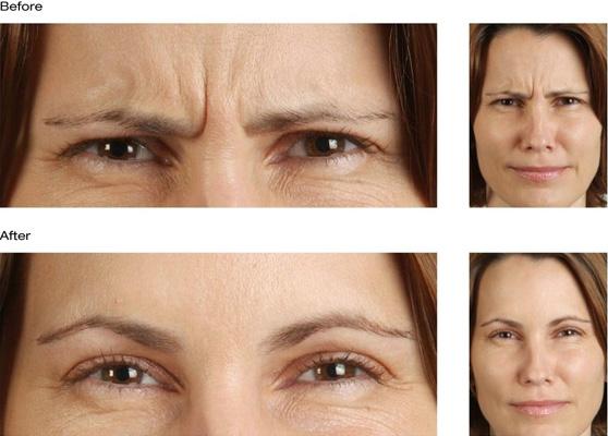 botox resimleri