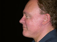 Male facelift Marin County