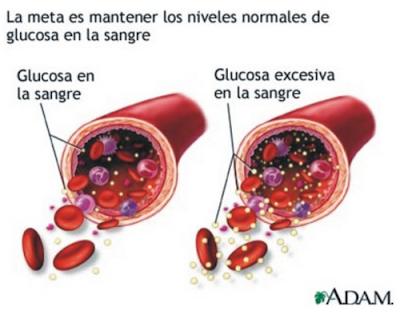 ¿La diabetes se cura?
