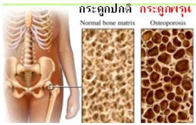 โรคกระดูกพรุน (Osteoporosis) ภัยเงียบของวัยทอง