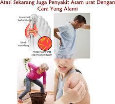 obat asam urat herbal buah manggis