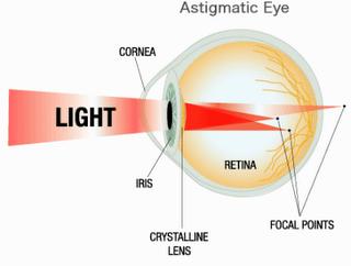 Suplemen Herbal untuk Menyembuhkan Mata Silinder