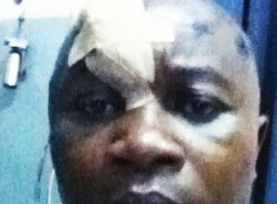 man shot in the head 5 times