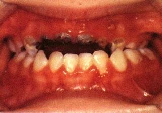 Apa Penyebab Gigi Anak Rusak, Keropos Dan Berlubang