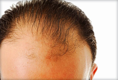 Hair Loss Caused by Diabetes