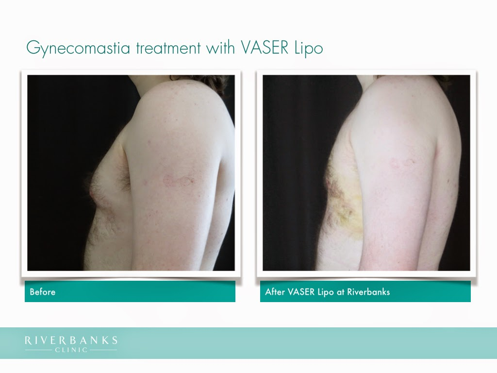 Before and after VASER Lipo for gynecomastia treatment