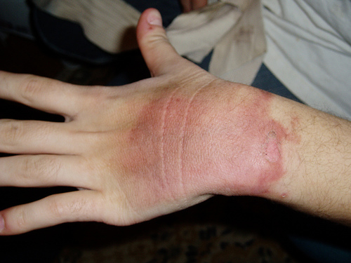 Effective Homemade Minor Burn Treatments