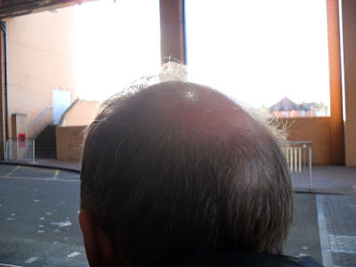 Bald Spot Picture Three