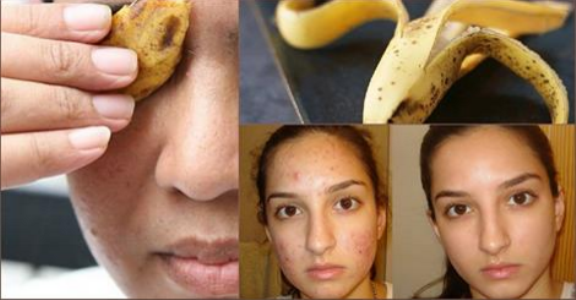 5 Simple Steps To Use Banana Peel For Acne