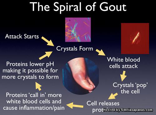 Punca-Gout