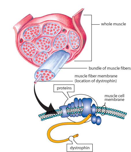 a genetic disease muscular dystrophy The muscular dystrophies, or md, are a group of more than 30 genetic (passed down by parents)  myotonic muscular dystrophy (steinert's disease.