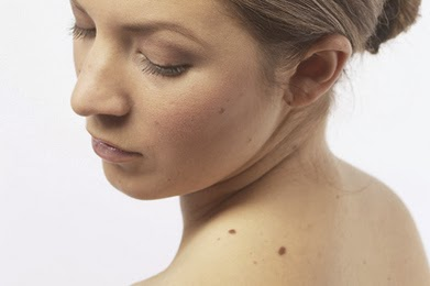 cause of Darks-Spots-On-Skin