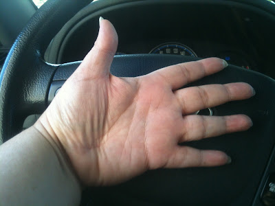 Photo of Ana Tirolese's left hand being propped open against the steering wheel of her vehicle. Photo taken with an iPhone by ©Ana Tirolese