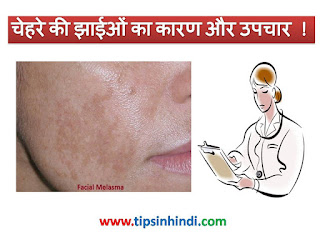 Face Melasma / Freckles causes and treatment in Hindi