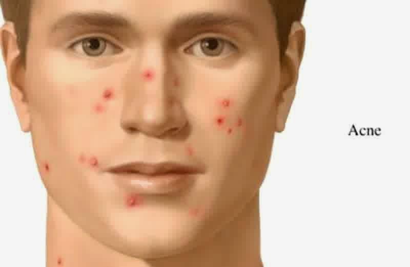 Easy To Eliminate Acne Men