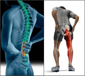 Dores nas pernas podem ser causadas pela compressão do nervo ciático na hérnia de disco, varizes