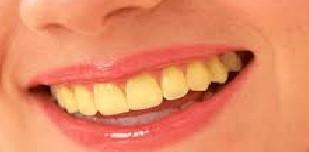 Penyebab Gigi Kuning yang Tidak Kita sadari