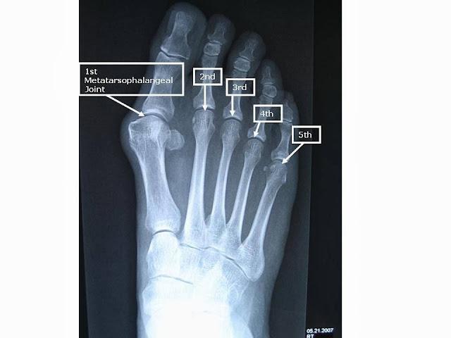 Radiology Anatomy Images : 2013