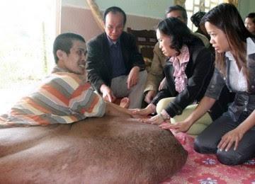 Pria Ini Mengidap Tumor Terbesar dengan Berat 80kg