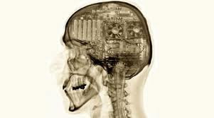 Radiografia de crânio humano mostrando engrenagens dentro do mesmo.
