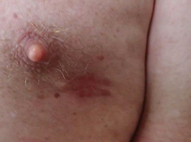 wayne's stitches healing bocas del toro panama