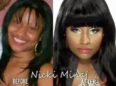 Nicki-Minaj-Photo-Before-surgery