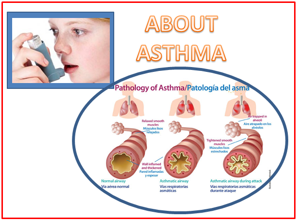 Medicinal drugs pertaining to the management of Asthma -- Are That they Safe and effective?
