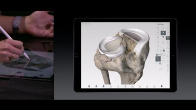 buongiornolink - Ecco come iPad Pro e Apple Pencil possono cambiare la sanità