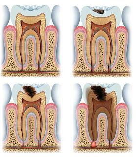Tahapan gigi berlubang