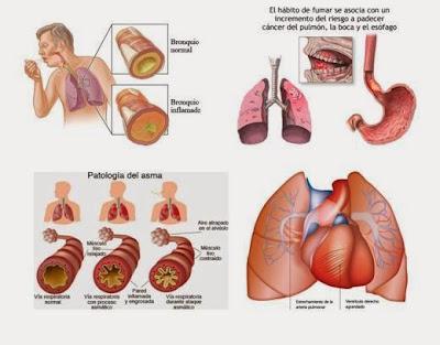 https://www.dropbox.com/s/97kzfz779yxx3z4/Respiratorio%20T-R-R.pdf?dl=0