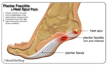 Sakit tumit dan tapak kaki