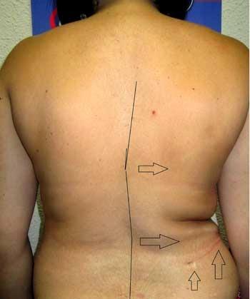 La operación skalioza de la columna vertebral