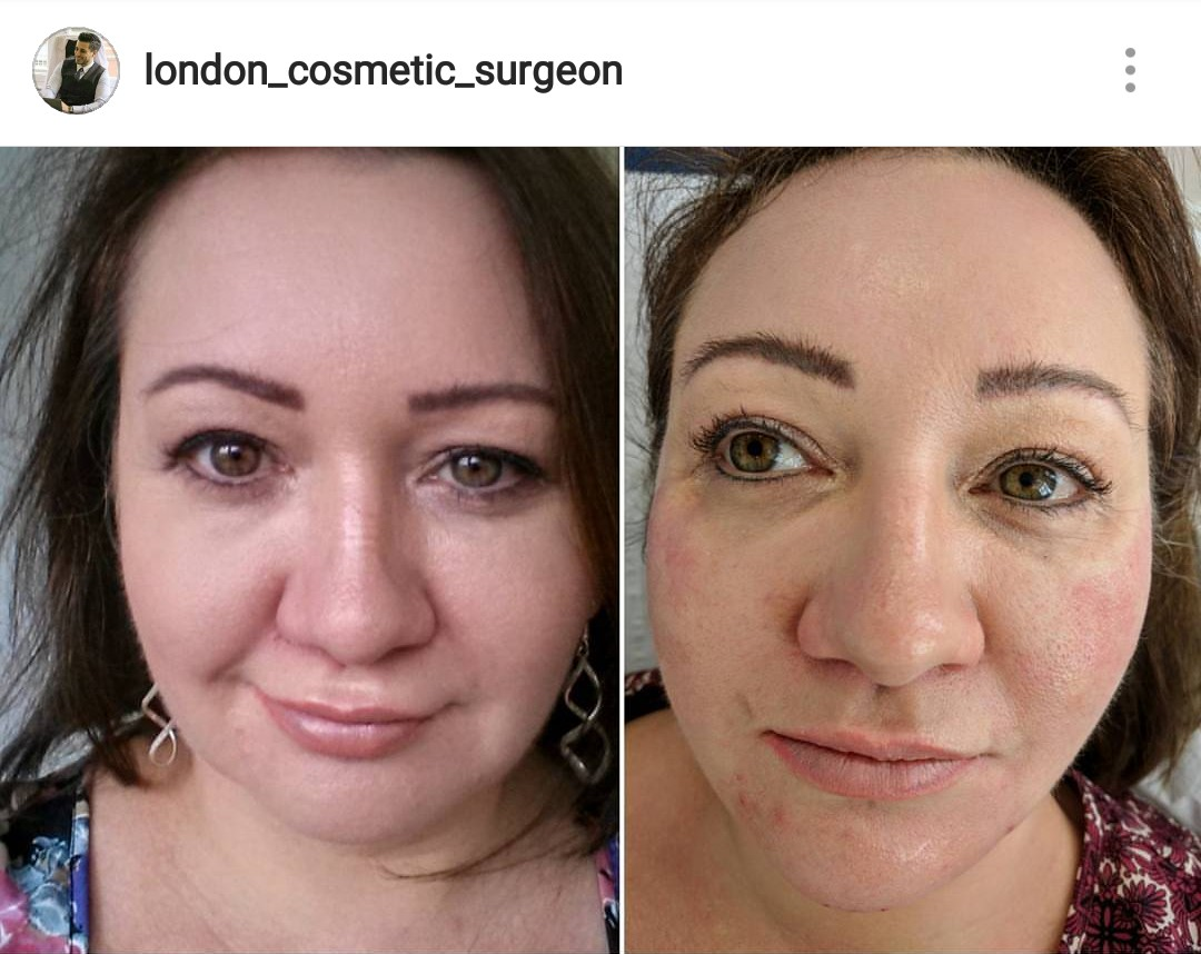 Before & After Chin & Cheek Fillers with Dr Deniz