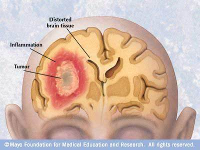 Brain cancer symptoms to look out for can be started from frequent