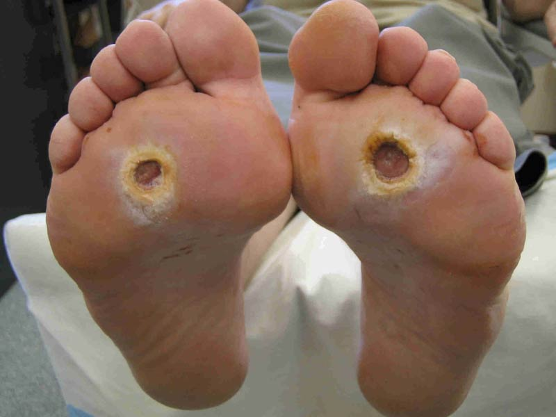 @ Diabetic Foot Ulcer Pictures - diabetes cure by food