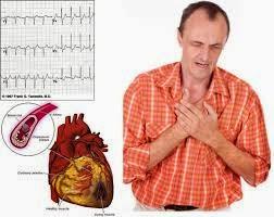 ÚLTIMAS NOTICIAS EN MEDICINA :Aumentan los infartos agudos de miocardio en personas entre 30 y 40