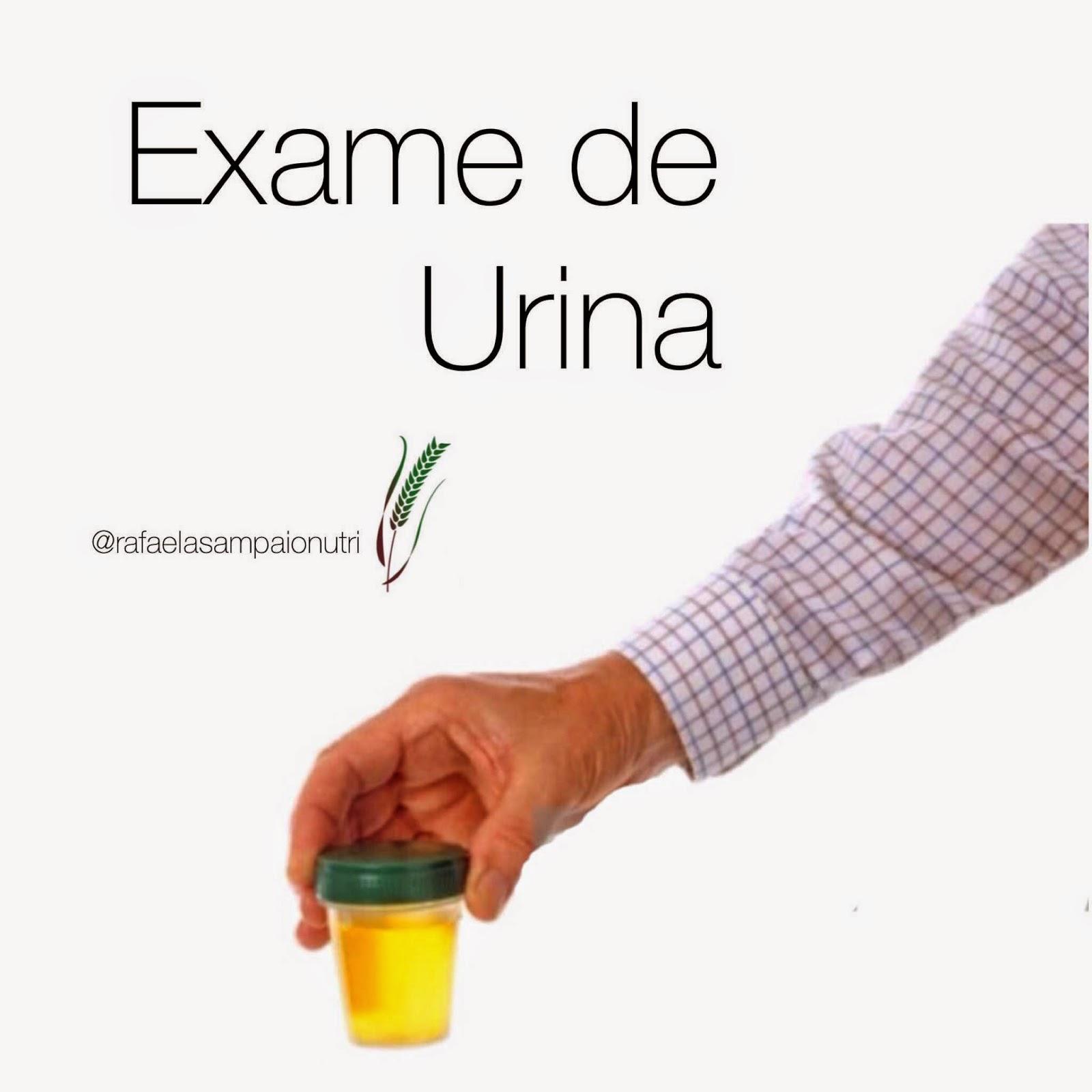 Pode fazer exame de urina menstruada