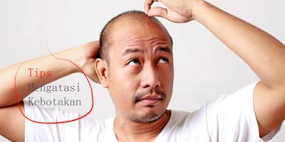 Tips Mengatasi Masalah Kebotakan pada Pria