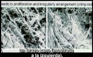 Imagen diferencia de fibras colágeno en escayola