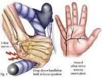Cedera pada pergelangan tangan